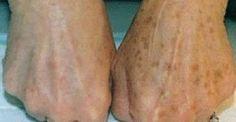Mit Heilpflanzen Hautflecken behandeln Treat skin spots with medicinal plants Herbal Remedies, Home Remedies, Natural Remedies, Age Spot Removal, Brown Spots On Face, Dark Spots, Skin Spots, Home Treatment, Healthy Skin