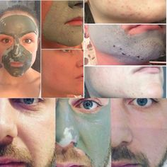 So this is one of my favourites   Our MIRACLE MUD MASK  it draws out all of the dirt and impurities from your skin leaving it fresh & hydrated   If you suffer with: Blackheads Acne Uneven skin tone Dry skin or simply want to treat your skin   Then you definitely need to try this!  It's all natural and as fantastic as it looks  Taking orders for this now message me for details Galvanic Spa, Nu Skin, Uneven Skin Tone, Epoch, Mud, Posts, Fresh, Drawings, Natural