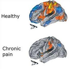 HAVE YOU CONSIDERED THAT WE ALWAYS HAVE AN EMOTIONAL RESPONSE TO PAIN?   Continuous pain lasting for more than 3 months is called chronic pain. Have you ever wondered can chronic pain cause depression?  Chronic pain triggers a series of physiologic and anatomic changes in the human body.  These changes are not adaptive, but rather, maladaptive (the body is injured by the changes). One of the most profound maladaptive changes that can occur is the development of depression.  Depression is a…