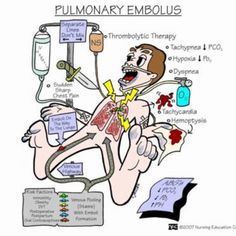 Pulmonary embolism: notify HCP NOW!! Emergency!