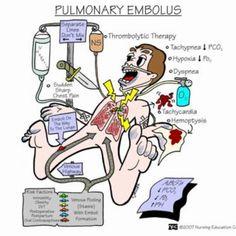 Pulmonary embolism: notify HCP NOW!! Emergency!