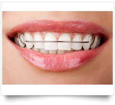6e68f8d46 Cuando se retiran los brackets y se ha alcanzado la posición dentaria  ideal