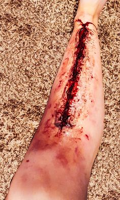 Deep wound on leg