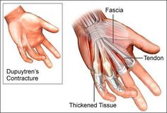 Dupuytren's Contracture Facts: Via Anatomy In Motion  A Dupuytren's contracture is a localized scar tissue formation in the palm. The precise cause of a Dupuytren's contracture is not known.A Dupuytren's contracture is sometimes inherited.