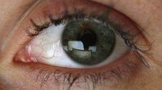 Mit Augengymnastik und den richtigen Augenübungen können Sie Ihre Sehkraft stärken - wir verraten Ihnen, wie das geht.