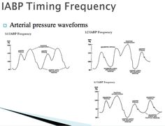 IABP timing frequency