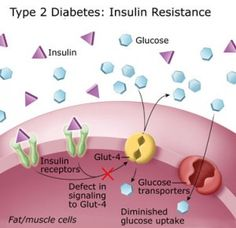 How to Reverse Diabetes Naturally – Are You At Risk? | Wellness Mama.  Pin and read later