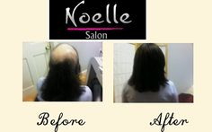 Trichotillomania suffer with a hair system at NoelleSalon.com