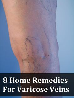 8 Home Remedies For Varicose Veins (Most of these are known, but the ACV and witch hazel I didn't know... the crappy side of having been pregnant)