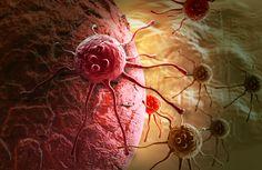 Les chercheurs de Dartmouth ont constaté que les personnes ayant à la fois des polypes dentelés et des adénomes peuvent présenter un risque plus élevé de cancer colorectal que les personnes présentant uniquement des adénomes.