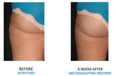 CoolSculpting Thighs Before and After
