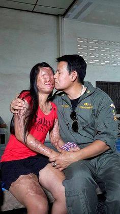Queda Desfigurada Tras un Terrible Accidente. Él, le Muestra al Mundo el Significado del Verdadero Amor.