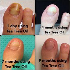 Toe Fungus Remedies, Foot Remedies, Toenail Fungus Treatment, Natural Remedies, Health Remedies, Tee Tree Oil, Foot Soak Recipe, Tea Tree Oil Uses, Nail Oil