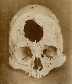 This ancient example of trepanation was found in Peru, outside modern day Lima.  (National Museum of Health & Medicine)