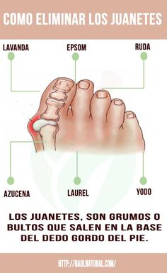 Como eliminar los juanetes Bone Health, Health Diet, Health And Nutrition, Health Fitness, Herbal Remedies For Depression, Get Rid Of Bunions, Cure Diabetes Naturally, Natural Health Remedies, Health And Beauty