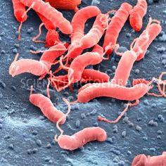 Helicobacter pylori bacteria, SEM