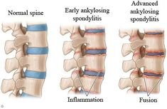 What is ankylosing spondylitis? Ankylosing spondylitis (AS) is a chronic (persistent) rheumatic (arthritic) disease of unknown cause. It mainly affects the spine and the sacroiliac joints. The word spondylitis means inflammation of the spine. The word ankylosing means bones that tend to join together (fuse) across a joint.