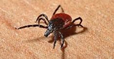 Lyme disease sickens per year in the U. alone, according to the CDC! Learn more about the different ways (BESIDES a tick bite! the symptoms (Lyme can mimic over 350 different diseases), and treatments. Lyme Disease Prevention, Disease Symptoms, Rocky Mountain Spotted Fever, Termite Pest Control, Tick Removal, Best Pest Control, Endocannabinoid System, Salud Natural, Insect Bites