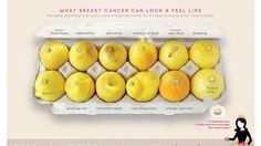 12 key signs of breast cancer, as seen in viral image of lemons | Fox News