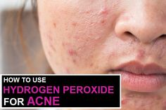Hydrogen peroxide is one of the home remedies that people use generally when they treat acne on their skin. Here is how to use hydrogen peroxide for acne