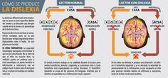 Burbuja de Lenguaje: Día Internacional de la Dislexia Speech Therapy, Science, Children, Diversity, Google, Medicine, Posters, Read And Write, Neuroscience