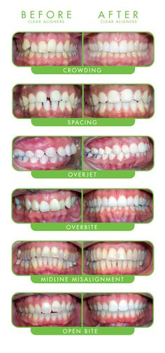 Plans Dental Crowns Before and After San Diego .Plans Dental Crowns before and after San Diego and After Braces - Tisseront Orthodontics 11720 Plaza America Dr, Ste 110 . Dental Humor, Dental Hygiene, Dental Health, Dental Care, Veneers Teeth, Dental Veneers, Weight Lifting, Invisalign, Braces Before And After