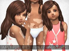 sims 4 mm cc maxis match vitiligo for children and toddlers