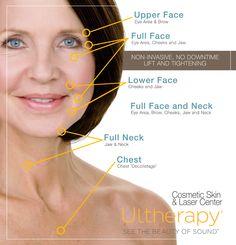 ultherapy - Cerca con Google