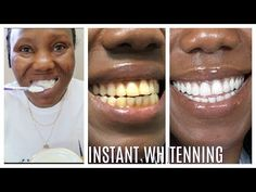 How I whitenning my yellow teeth in 2 Minutes Bleach Teeth At Home, Teeth Whiting At Home, Colgate Toothpaste, Homemade Toothpaste, Baking Soda And Lemon, Natural Teeth Whitening, Baking Soda Whitening Teeth, Teeth Bleaching, Teeth Health