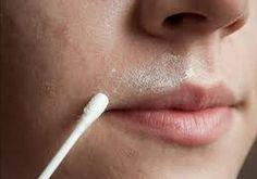 Einfaches Hausmittel gegen Gesichtsbehaarung und für eine strahlende Haut: