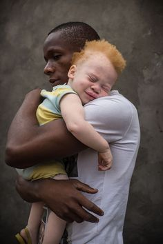 When photographer Yulia Taits posted her hypnotizing photo series that capture the beauty of Albino people, it inspired us to look further and find more people with Albinism. We Are The World, People Of The World, Albino African, Pretty People, Beautiful People, Paddy Kelly, Fathers Love, History Photos, Vintage Photos