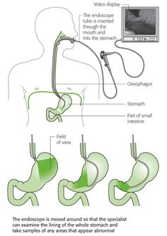 Endoscopy of the upper gastrointestinal tract - EGD