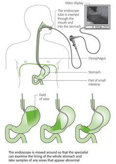 Endoscopy of the upper gastrointestinal tract - EGD Rn School, Pharmacy School, Medical Science, Medical Care, Nursing Notes, Medical Field, Medical Information, Nurse Practitioner, Wellness