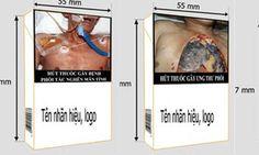 Việt Nam sắp in hình 'sốc' trên bao thuốc lá - Tin tức 247