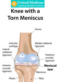 For Meniscus Tear Treatment Joint Clinic Is Best Option