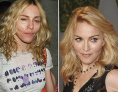 """Madonna with and without makeup...she's still """"gorgeous"""" <3 Celebrities Before And After, Celebrities Then And Now, Kim Kardashian, Cindy Crawford, Julia Roberts, Mariah Carey, Britney Spears, Madonna, Bad Plastic Surgeries"""