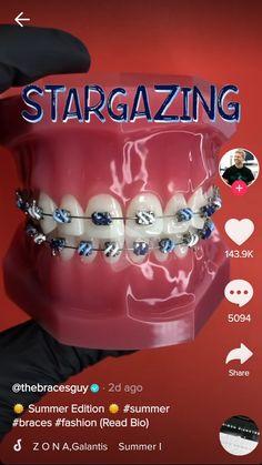 Dental Braces, Teeth Braces, Braces Transformation, Cute Braces Colors, Braces Tips, Getting Braces, Girl Film, Brace Face, Teeth Bleaching