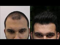 HLC www.hairtransplantcenter-turkey.com Turkey Istanbul - Ankara 3600 Grafts FUE - dense packing