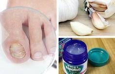 ¿Padeces hongos en las uñas de los pies y manos? no te pierdas los siguientes 7 remedios caseros que te pueden ayudar a combatirlos.