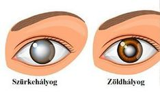 Van egy hétköznapi növény, ami a legrettegettebb szem betegségektől is megóvhat - Egy az Egyben