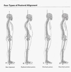 PRESS: Postures and Correct Body Alignment - by Chloe Hodgson