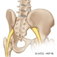 """Sciatic Nerve - This can literally be a """"pain in a runners butt!"""" Make sure you are treating your piriformis pain by seeking out healthy professional who will give you proper diagnosis treatment exercises stretches. Sciatic Nerve, Sciatica, Workout List, Muscle Weakness, Back Pain Relief, Low Back Pain, Third Way, Knee Pain, Injury Prevention"""
