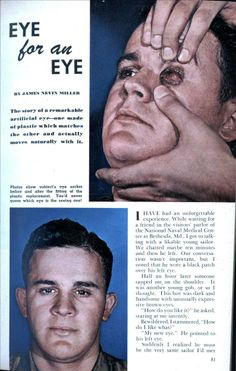 June 1946 EYE for an EYE | Modern Mechanix; The story of a remarkable artificial eye – one made of plastic which matches the other and actually moves naturally with it.