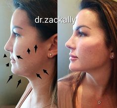 JAWLINE CONTOURING Hello new, sharp and chiseled jawline! This patient flew in from Romania with her friend and both were looking to… Under Eye Fillers, Cheek Fillers, Botox Fillers, Dermal Fillers, Face Plastic Surgery, Celebrity Plastic Surgery, Chin Liposuction, Chiseled Jawline, Botox Lips