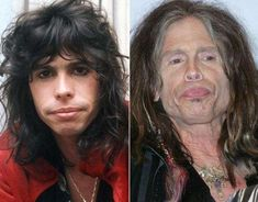 Aerosmith frontman Steven Tyler has had more than his fair share of sex, drugs and rock and roll since this 1976 photo (above, l. But while we're psyched that he's going to be the new judge on 'American Idol,' we may not being watch the show in HD . Steven Tyler, Mia Tyler, Bad Plastic Surgeries, Plastic Surgery Gone Wrong, Vince Vaughn, Celebrities Before And After, Celebrities Then And Now, Before And After Haircut, Mickey Rourke