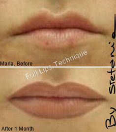 Before and after procedures images