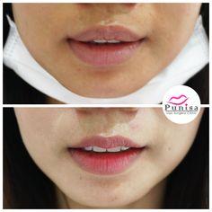 #Punisaclinic #ศัลยกรรม #ปาก #ศัลยกรรมปาก #ปากบาง #ปากกระจับ #ปากปีกนก  #Beauty #Number1 #Lips #LipReduction #LipSurgery #Professional #Lip #Reduction #Surgery #Thailand #plasticsurgery #lipreductionsurgery #thailand #doctorthinlips#Punisaclinic #lipsurgery #lipreduction#lipreductionsurgery #asianlips #plasticsurgeons#plasticsurgery #Thailandsurgery Lip Surgery, Moth, Lips