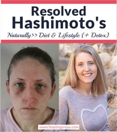 with me. You'll have to determine that for yourself though. Colostrum is a powerful supplement! Before we leave the topic of food, I wanted to share a Hashimotos Symptoms, Hashimotos Disease Diet, Thyroid Disease, Thyroid Health, Autoimmune Disease, Heal Wounds Faster, Infrared Sauna Benefits, Severe Eczema, Chronic Stress