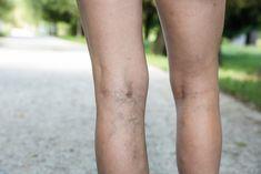 Foto: Shutterstock Krampfadern– Durch zunehmende sitzende Tätigkeit und mangelnde Bewegung leiden viele Menschen unter dieser Krankheit. Das zunächst kosmetische Problem kann bei zunehmender Ausprägung auch ernste gesundheitliche Folgen haben. Schwellungen führen zu Schmerzen und Beinkrämpfen. Außerdem kann es zu oberflächlichen Thrombosen, Entzündungen im Venensystem und offenen Beinen kommen. Welche Maßnahmen kann ich gegen die Vorbeugung von Krampfadern ergreifen? Die positive Nachricht…