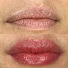 Lip Blush — Laurel Lip Color Tattoo, Lip Permanent Makeup, Lip Plumping Balm, Cosmetic Tattoo, Lip Injections, Cosmetic Procedures, Microblading Eyebrows, Dark Lips, Lip Fillers